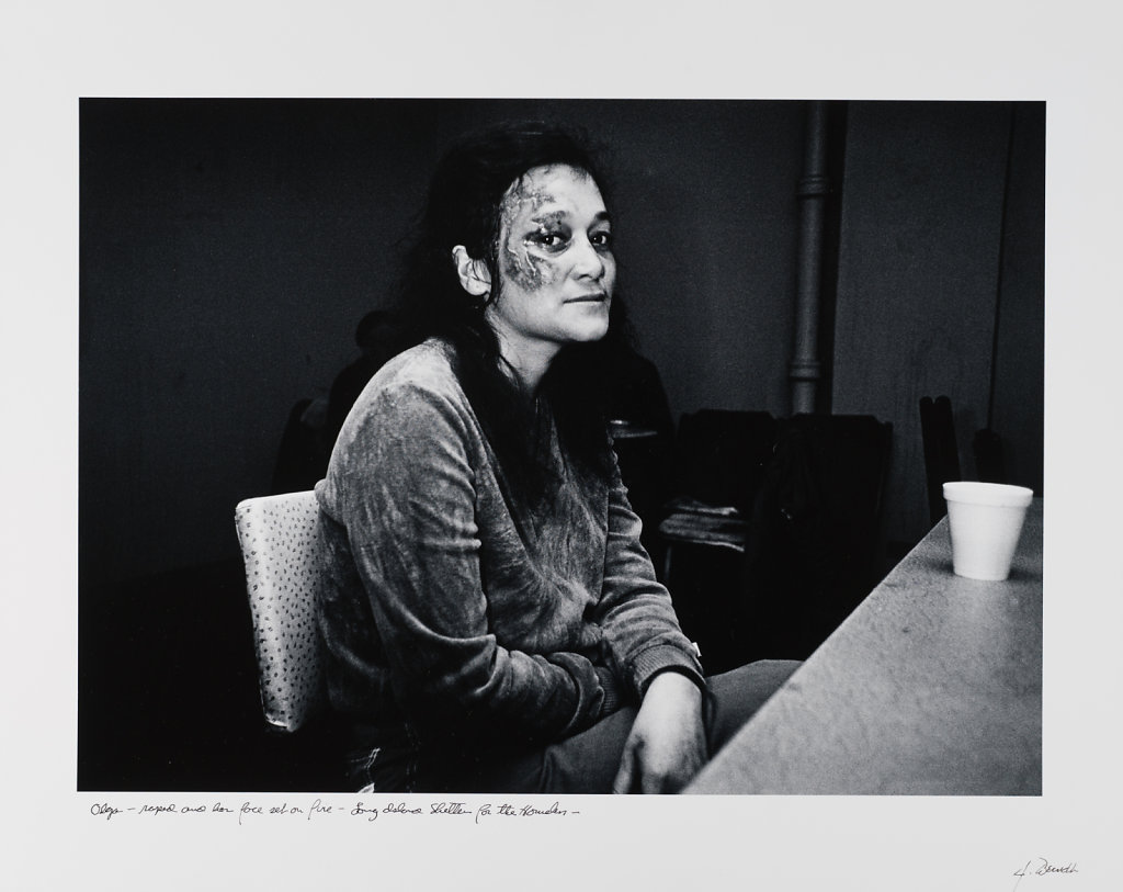 Olga, raped and her face set on fire, Long Island Shelter fot then Homeless, 1983