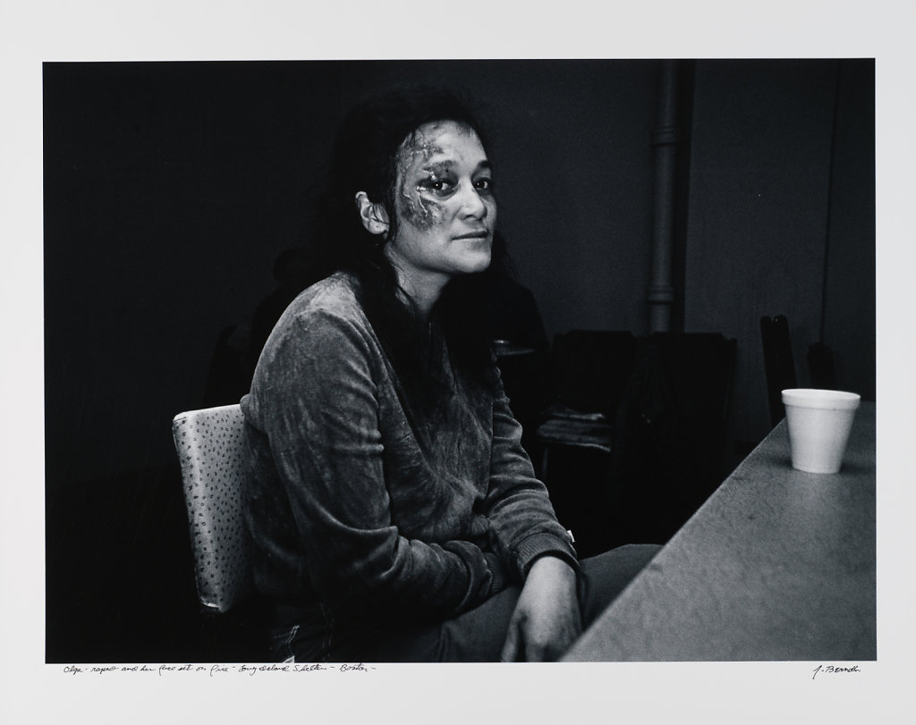 Olga, raped and her face set on fire, Long Island Shelter, Boston, 1983