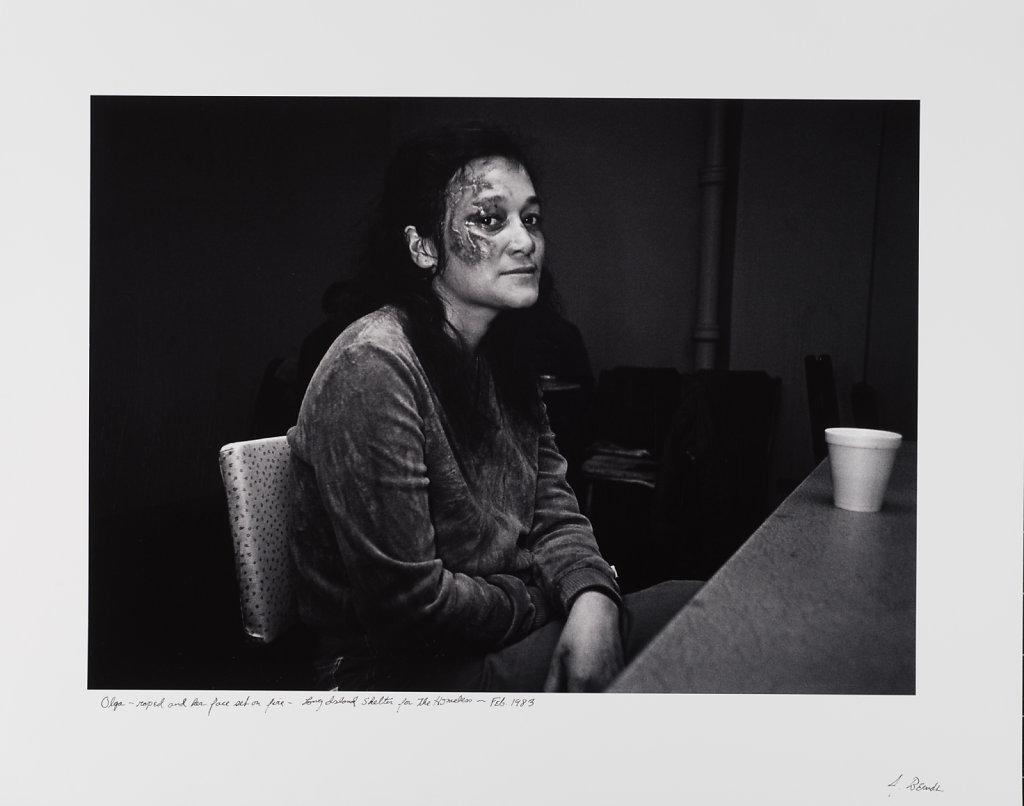 Olga, raped and set on fire, Long Island Shelter, Boston, 1983